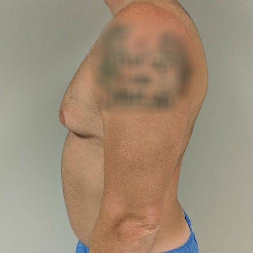 Gynecomastia Gallery - Patient 3762347 - Image 9