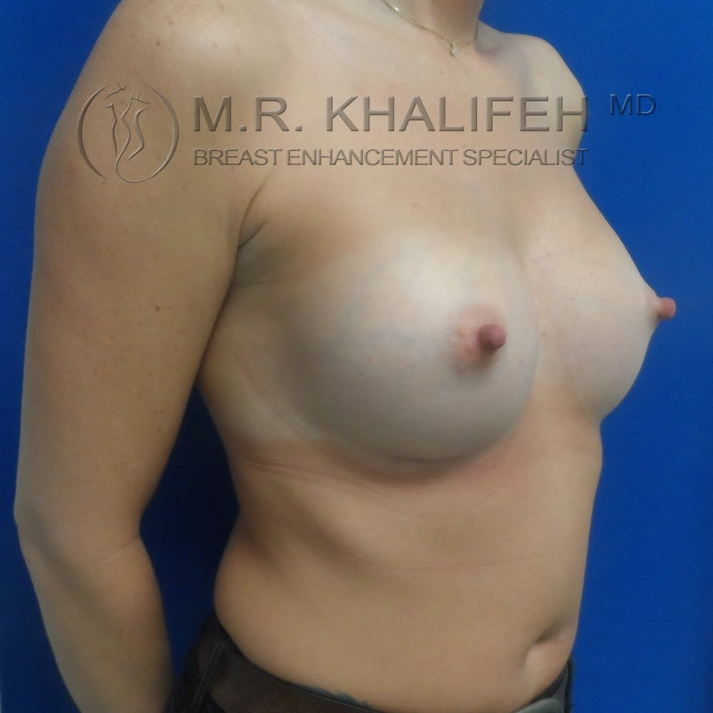 Breast Augmentation Gallery - Patient 3762350 - Image 8