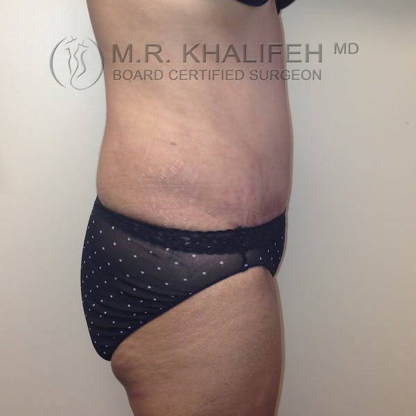 Tummy Tuck Gallery - Patient 3762351 - Image 4