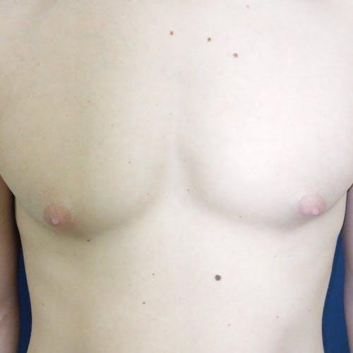 Gynecomastia Gallery - Patient 3762357 - Image 1
