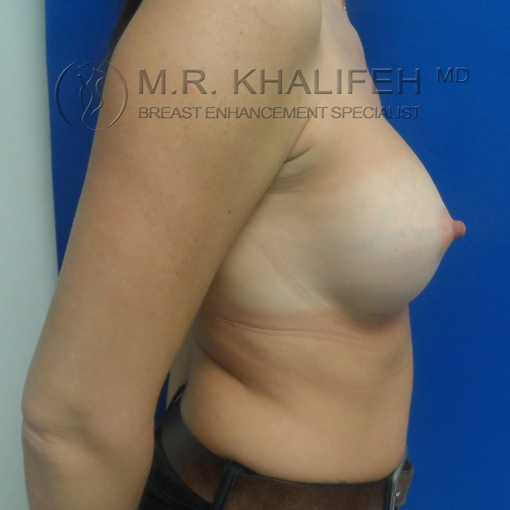 Breast Augmentation Gallery - Patient 3762350 - Image 10