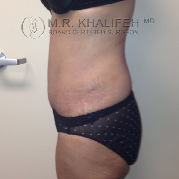 Tummy Tuck Gallery - Patient 3762351 - Image 6