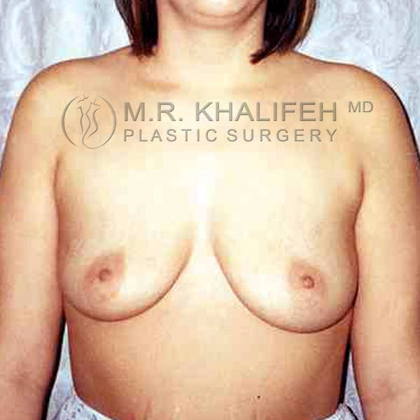 Breast Augmentation Gallery - Patient 3762359 - Image 1