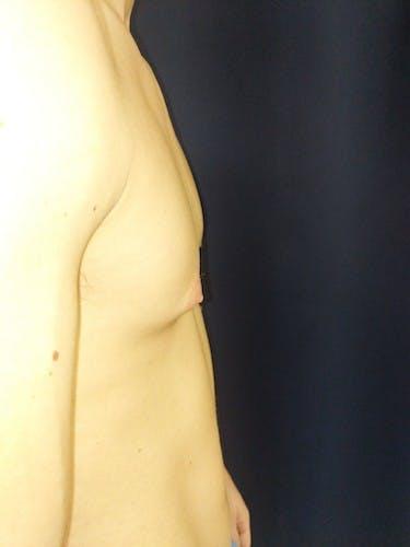 Gynecomastia Gallery - Patient 3762357 - Image 5