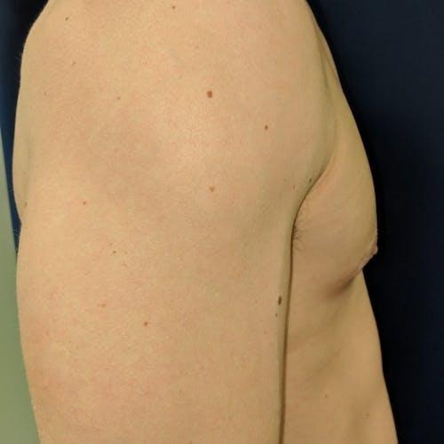 Gynecomastia Gallery - Patient 3762357 - Image 6