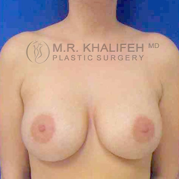 Breast Augmentation Gallery - Patient 3762359 - Image 2