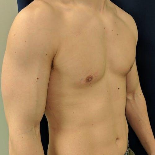 Gynecomastia Gallery - Patient 3762357 - Image 8