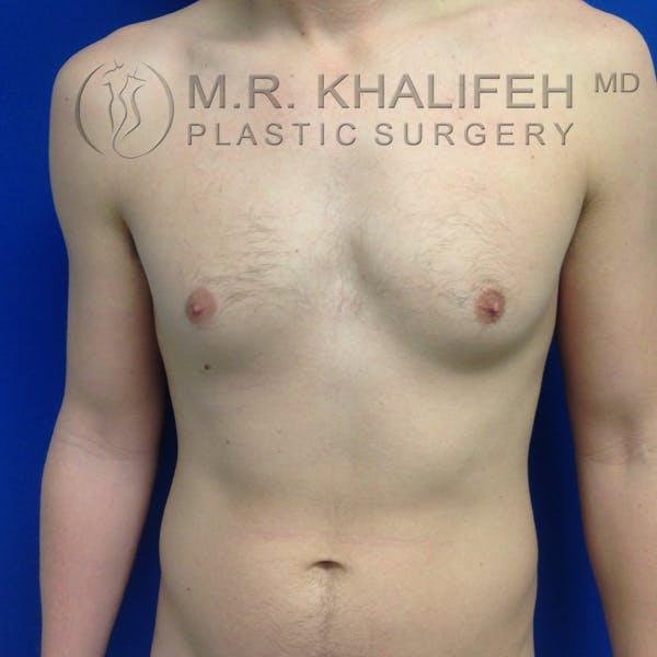 Gynecomastia Gallery - Patient 3762364 - Image 1