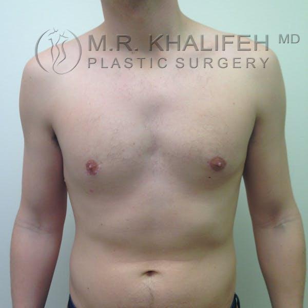 Gynecomastia Gallery - Patient 3762364 - Image 2