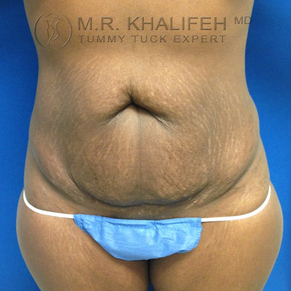 Tummy Tuck Gallery - Patient 3762366 - Image 1