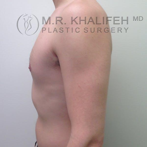 Gynecomastia Gallery - Patient 3762364 - Image 4