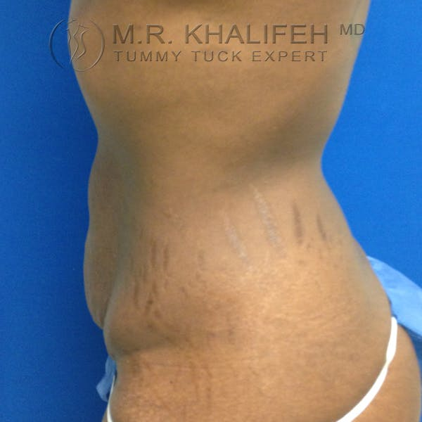 Tummy Tuck Gallery - Patient 3762366 - Image 3