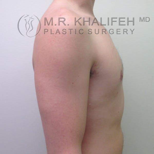 Gynecomastia Gallery - Patient 3762364 - Image 6