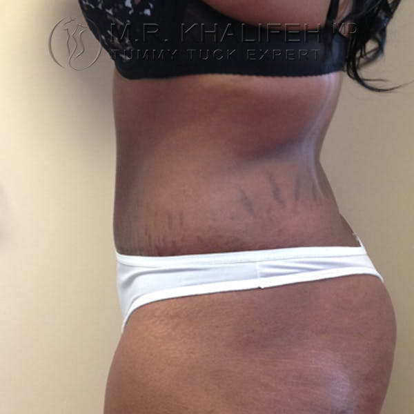 Tummy Tuck Gallery - Patient 3762366 - Image 4