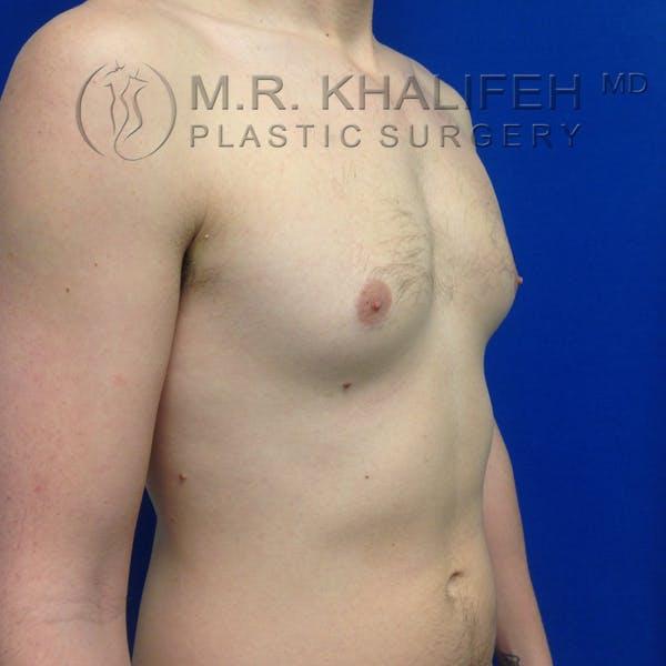 Gynecomastia Gallery - Patient 3762364 - Image 7