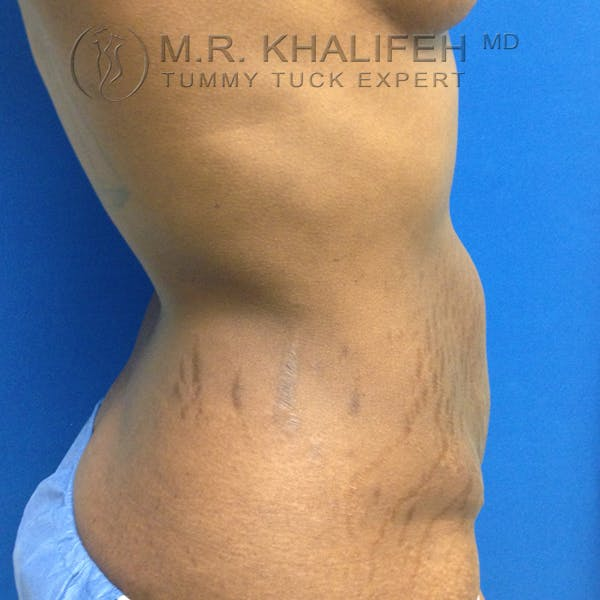 Tummy Tuck Gallery - Patient 3762366 - Image 5