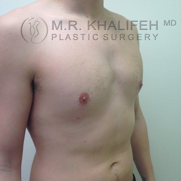 Gynecomastia Gallery - Patient 3762364 - Image 8