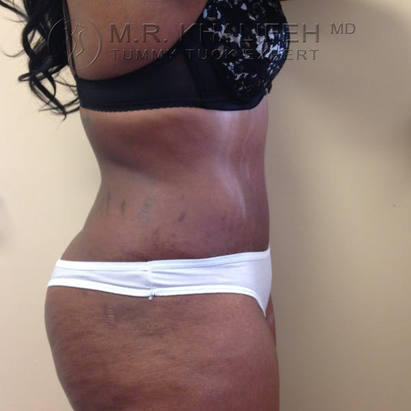 Tummy Tuck Gallery - Patient 3762366 - Image 6