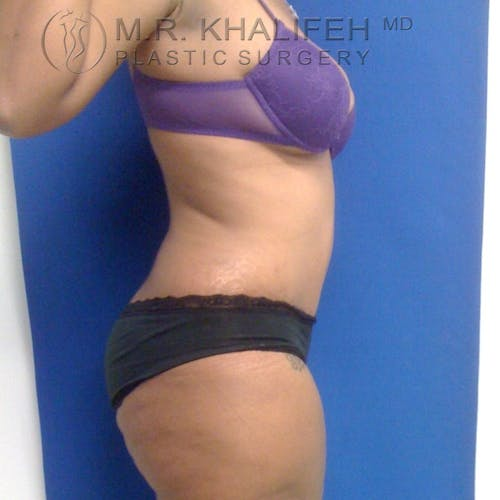 Tummy Tuck Gallery - Patient 3762369 - Image 4