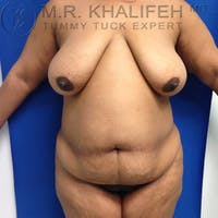 Tummy Tuck Gallery - Patient 3762374 - Image 1
