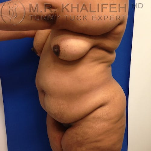 Tummy Tuck Gallery - Patient 3762374 - Image 3