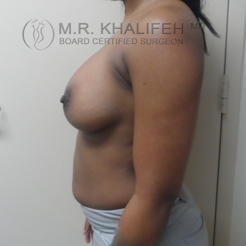 Breast Augmentation Gallery - Patient 3762377 - Image 6
