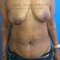 Tummy Tuck Gallery - Patient 3762381 - Image 1