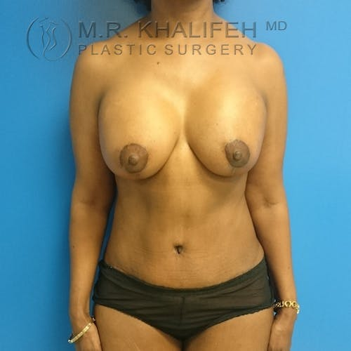 Tummy Tuck Gallery - Patient 3762381 - Image 2