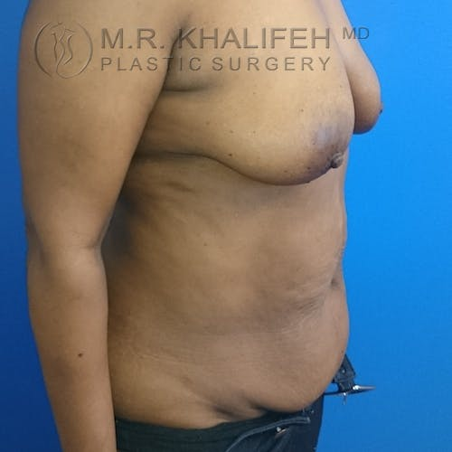 Tummy Tuck Gallery - Patient 3762381 - Image 3