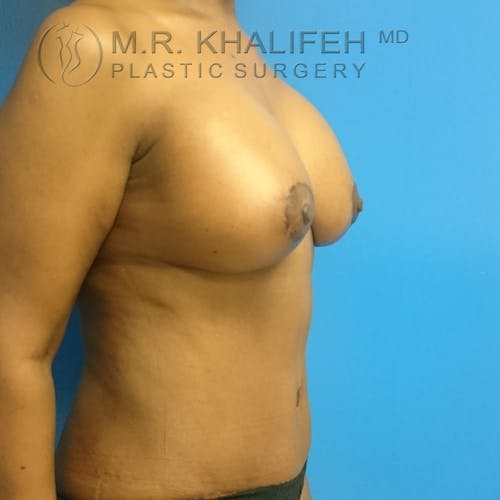 Tummy Tuck Gallery - Patient 3762381 - Image 4