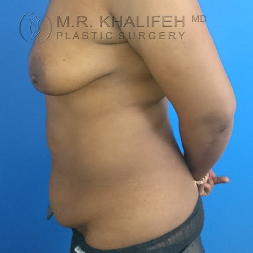 Tummy Tuck Gallery - Patient 3762381 - Image 7