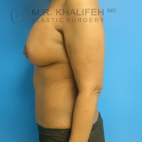 Tummy Tuck Gallery - Patient 3762381 - Image 8