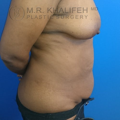 Tummy Tuck Gallery - Patient 3762381 - Image 9