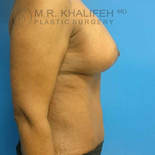 Tummy Tuck Gallery - Patient 3762381 - Image 10
