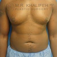 Gynecomastia Gallery - Patient 3762385 - Image 1