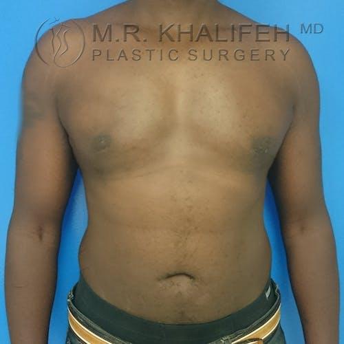 Gynecomastia Gallery - Patient 3762385 - Image 2