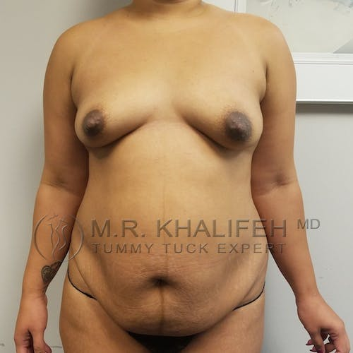 Tummy Tuck Gallery - Patient 3762386 - Image 1