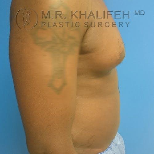Gynecomastia Gallery - Patient 3762385 - Image 3