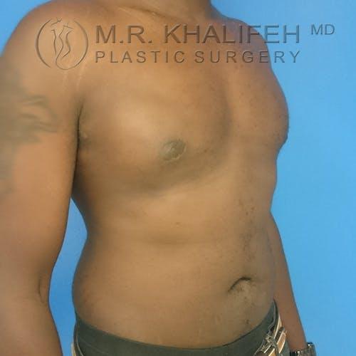 Gynecomastia Gallery - Patient 3762385 - Image 5