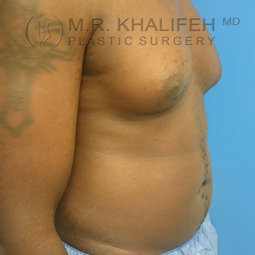 Gynecomastia Gallery - Patient 3762385 - Image 6