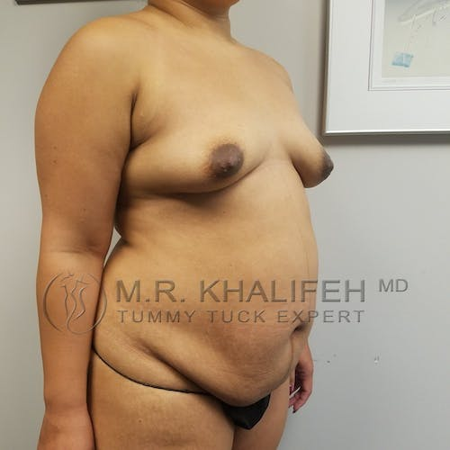Tummy Tuck Gallery - Patient 3762386 - Image 5