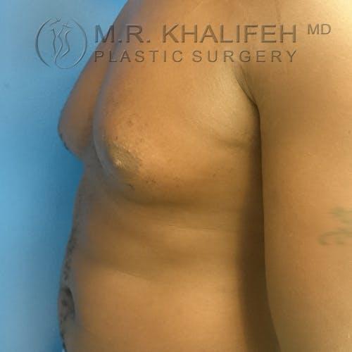 Gynecomastia Gallery - Patient 3762385 - Image 8
