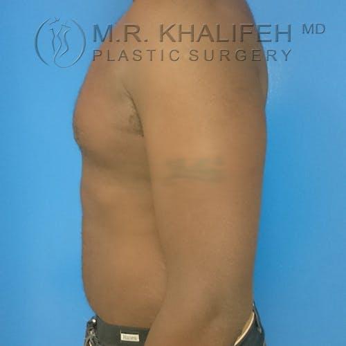 Gynecomastia Gallery - Patient 3762385 - Image 9