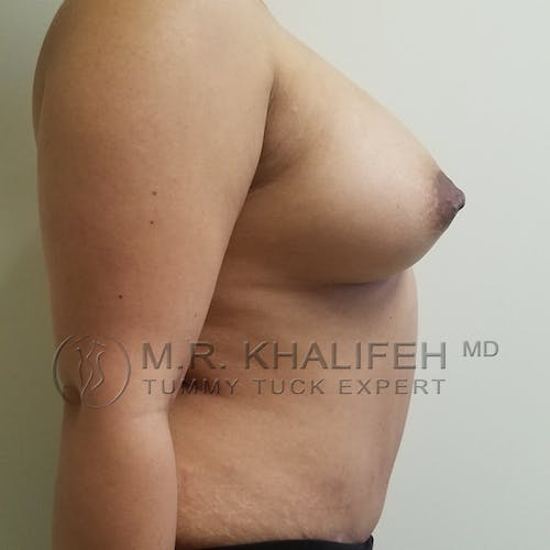 Tummy Tuck Gallery - Patient 3762386 - Image 10