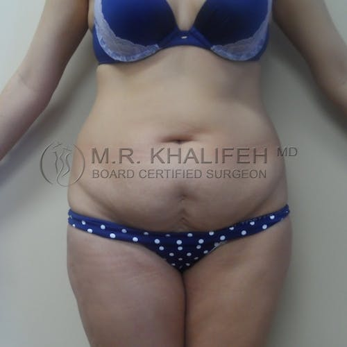 Tummy Tuck Gallery - Patient 3762389 - Image 1