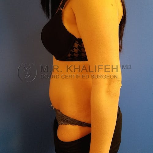 Tummy Tuck Gallery - Patient 3762389 - Image 4