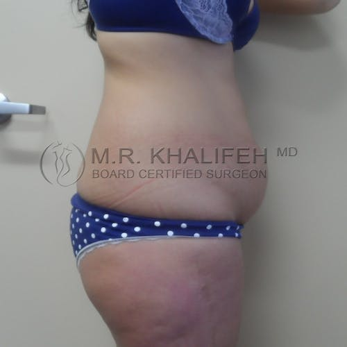 Tummy Tuck Gallery - Patient 3762389 - Image 5