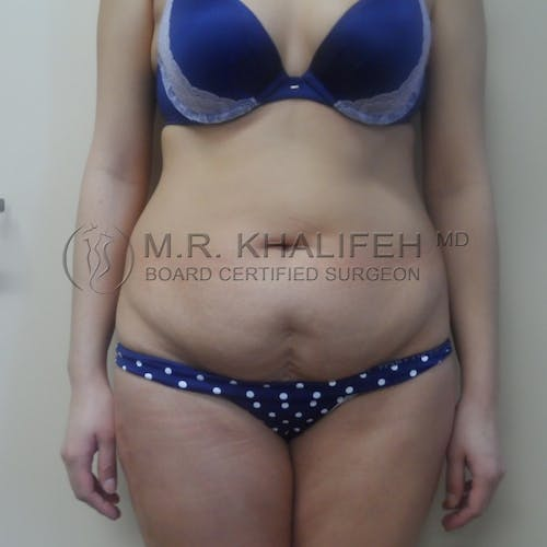 Tummy Tuck Gallery - Patient 3762389 - Image 7