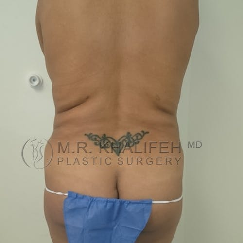 Tummy Tuck Gallery - Patient 3762391 - Image 7