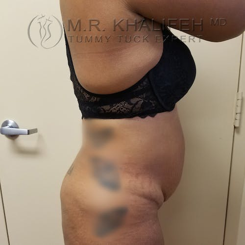 Tummy Tuck Gallery - Patient 3762396 - Image 3